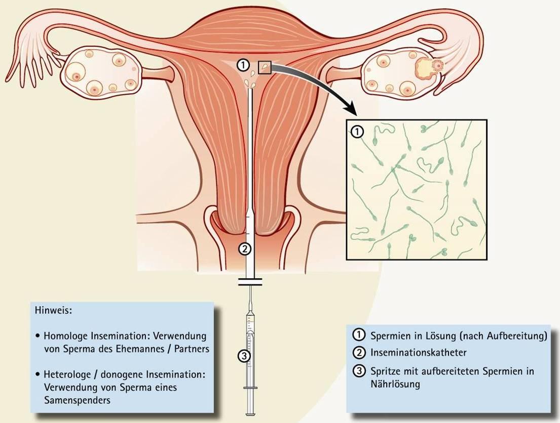 insemination Es wird unterschieden zwischen einer Insemination ohne Stimulation und mit Stimulation.