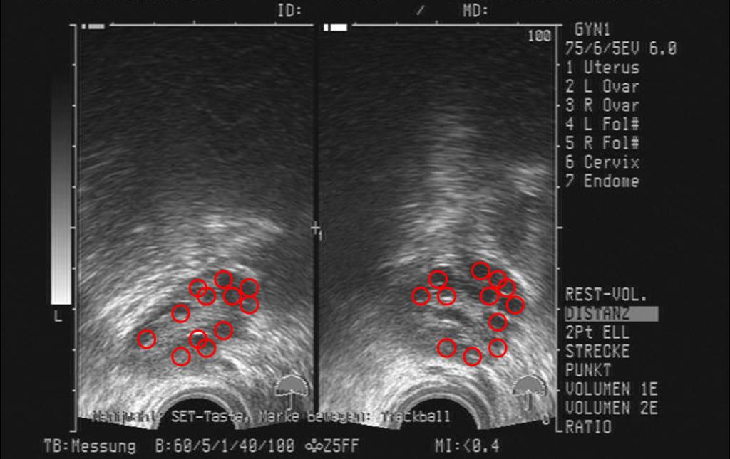 Ovulationsblutung Vor Eisprung